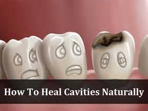 cure cavities