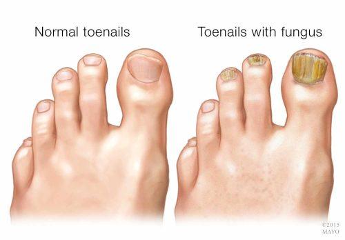 yellow toenail fungus