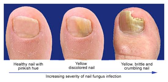 what causes toenail fungus